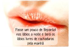 saude-como-curar-os-labios-rachados-br